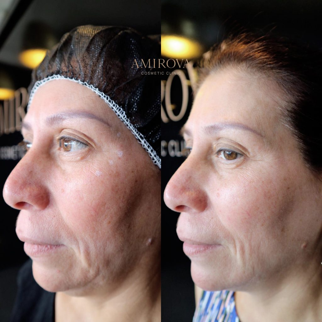 lower face injectables before and after